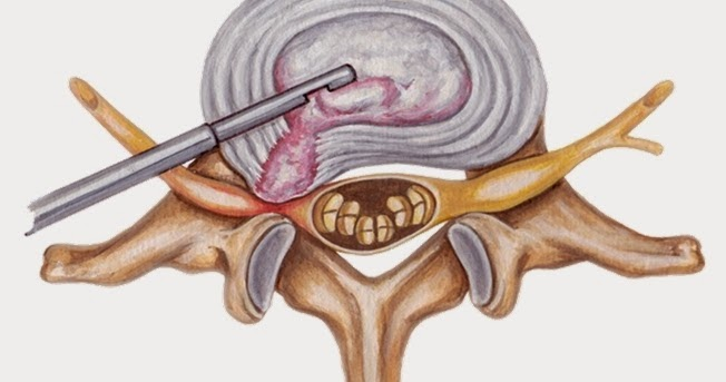 Spine Surgery And Treatment In India Minimally Invasive