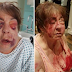 63 year old disabled grandma brutally beaten by thugs over her son's £100 cannabis debt [graphic]