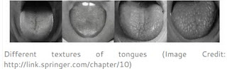 tongue structure