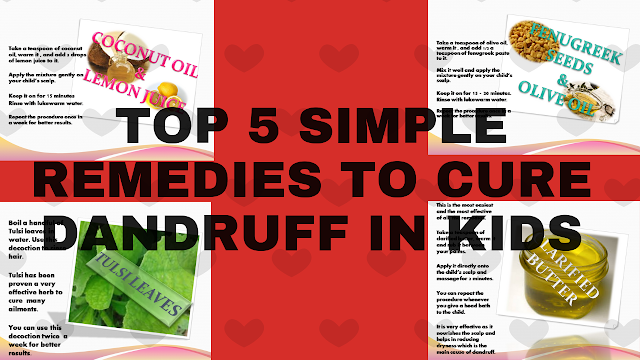 Top 5 Simple Remedies To Treat Dandruff In Kids