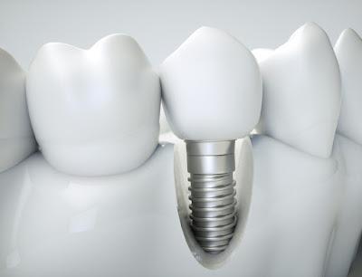 nhung-dac-diem-cua-rang-su-implant
