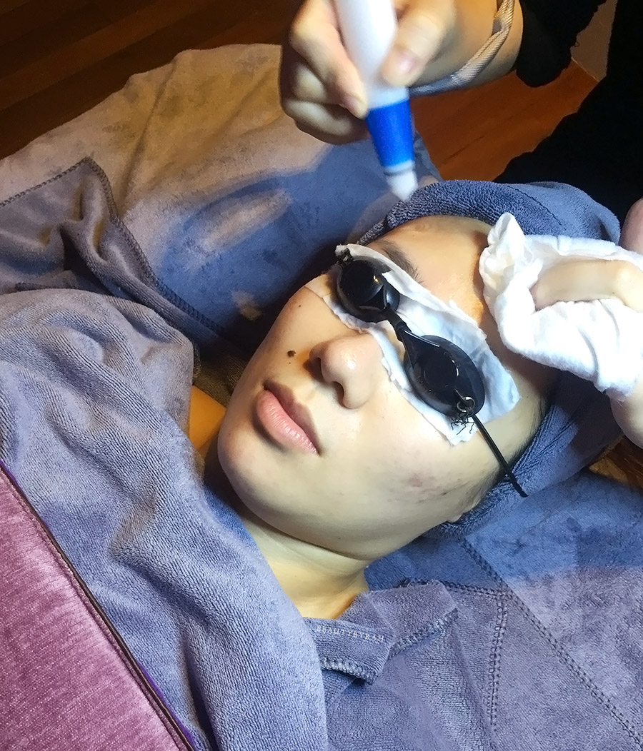 J Studios Oxygen Facial Review