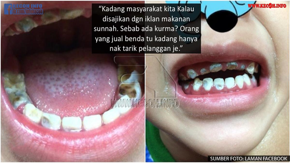 Melayu Ramai Kena Tipu Kerana Percaya Makanan Di Label Sebagai Sunnah, Tapi Kesihatan Tolak Tepi