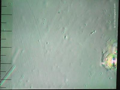 слюна под микроскопом