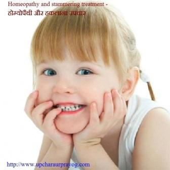 बच्चों का हकलाना-Children Stutter