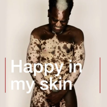 'People said I looked like a zebra' - Model with Vitiligo Bashir Aziz is Happy in his Skin