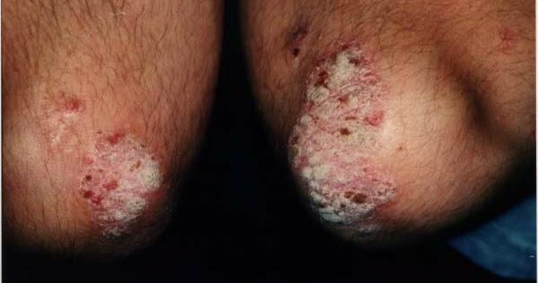 El tratamiento de la psoriasis de las palmas y las plantas