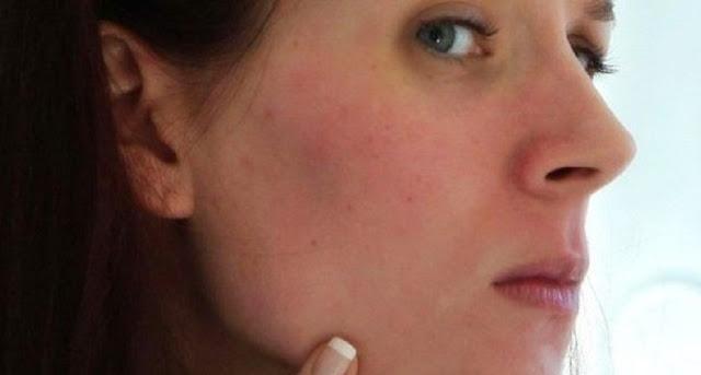 Penyebab Kulit Wajah Kemerahan dan Cara Mengatasinya