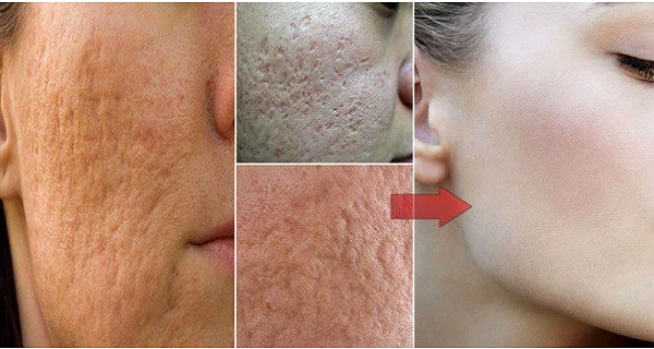 How To Get Rid Of Large Pores On Face,And Find A Baby Skin. Magic !