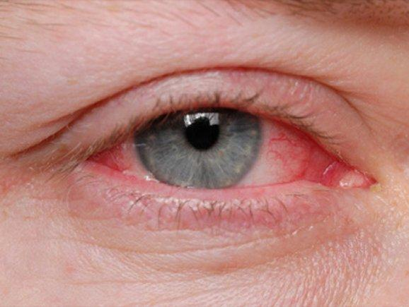 35981772c9 Περιβόλι της Παναγιάς  Κόκκινα μάτια  Τι προκαλεί το ενοχλητικό ...