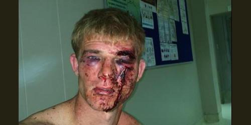 Image result for whites beaten by blacks