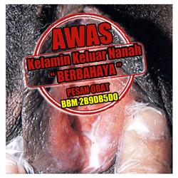 Pencegahan Penyakit Kencing Nanah Atau Gonore