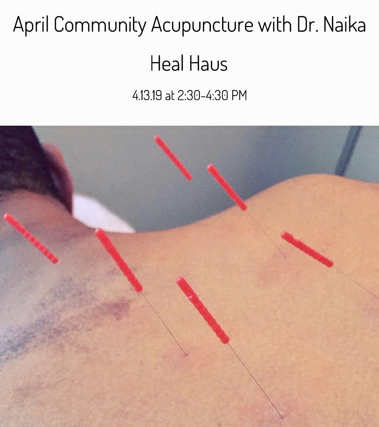 April Community Acupuncture: 4.13 at Heal Haus