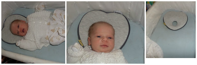flat head syndrome,  Plagiocephaly Awareness Day,  Plagiocephaly