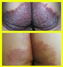 Resep Obat untuk Penderita Gatal-gatal di Pantat Ampuh