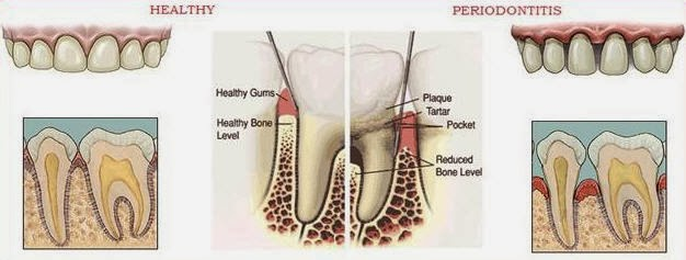 Pengertian periodontitis dan cara pencegahannya