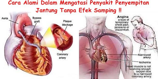 Obat Tradisional Tuntaskan Penyempitan Jantung