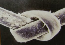 imagen de pelo al microscopio electrónico
