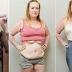 Mulher perde 83 kg por condição rara que a faz vomitar até 60 vezes por dia