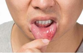 Baking Soda Canker Sore, Baking Soda For Canker Sore, Baking Soda And Canker Sore, Canker Sore, How To Get Rid Of Canker Sore, Canker Sore Remedy, Canker Sore Treatment, How To Treat Canker Sore, Home Remedies For Canker Sore, Canker Sore Home Remedies, How To Cure Canker Sore, Treatment For Canker Sore,