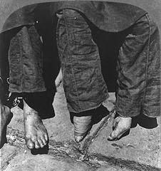 bound-feet