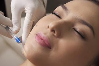 Perawatan Wajah di Klinik Kecantikan Gloskin Aesthetic Clinic