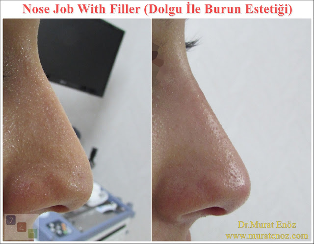Effect time of hyaluronic acid fillers for non surgical nose job? - How to extend the cross linked HA filer effect time? - Non-surgical nose job - Non surgical nose job with filler in İstanbul - Non-surgical rhinoplasty in İstanbul - Nose tip filler augmentation in İstanbul - Non-surgical rhinoplasty in İstanbul - Nose filler injection in Turkey - The 5 Minute Nose Job in İstanbul, Turkey - Non-surgical nose job in Istanbul - Non-surgical nose job istanbul - Nose filler injection Turkey - Injectable nose job - Liquid rhinoplasty