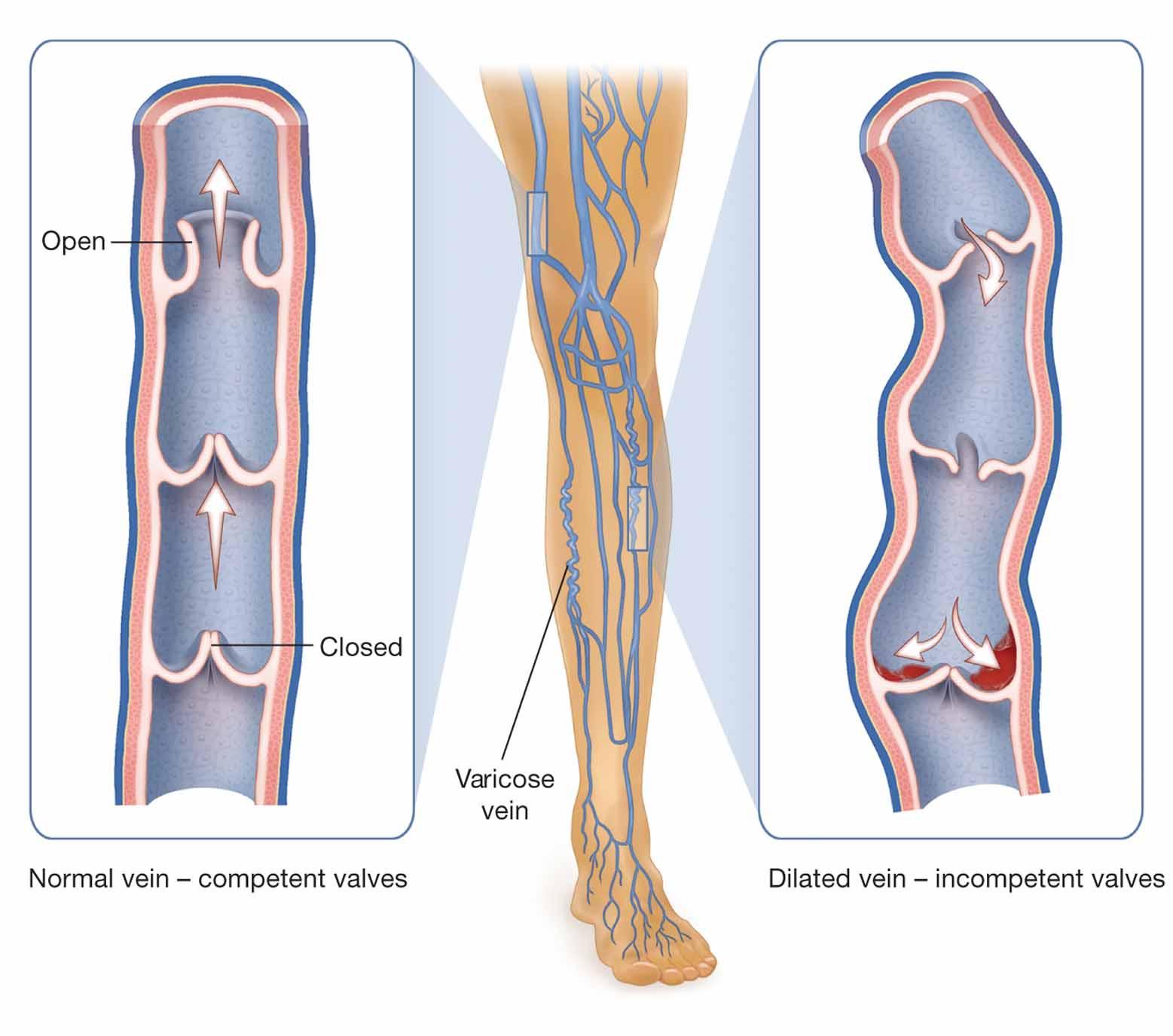 insuficiență venoasă cronică vs boală arterială periferică