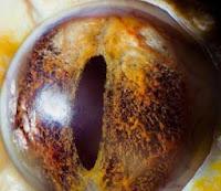 Sarı Yılanların Gözü Renklimi