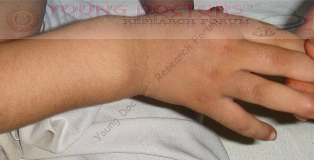 Common Diseases Seen in Children : Diseases of Paediatrics ...