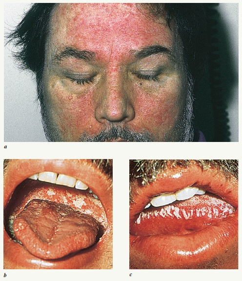 Clinical manifestations in a patient with AIDS