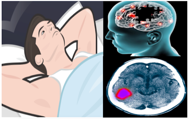 This Is the Side Effects into Your Brain If You Are Lack of Sleep