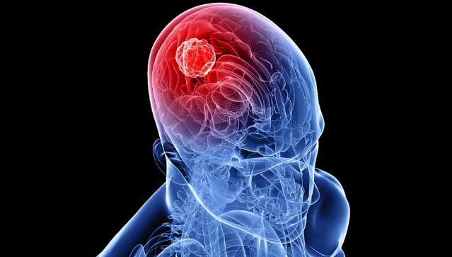 Symptoms of Brain Cancer in Adults