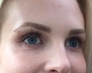 Dry Skin Beneath Eyes