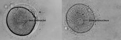 Embryo Grading