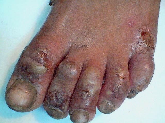 obat mengatasi eksim kering dan gatal di kaki