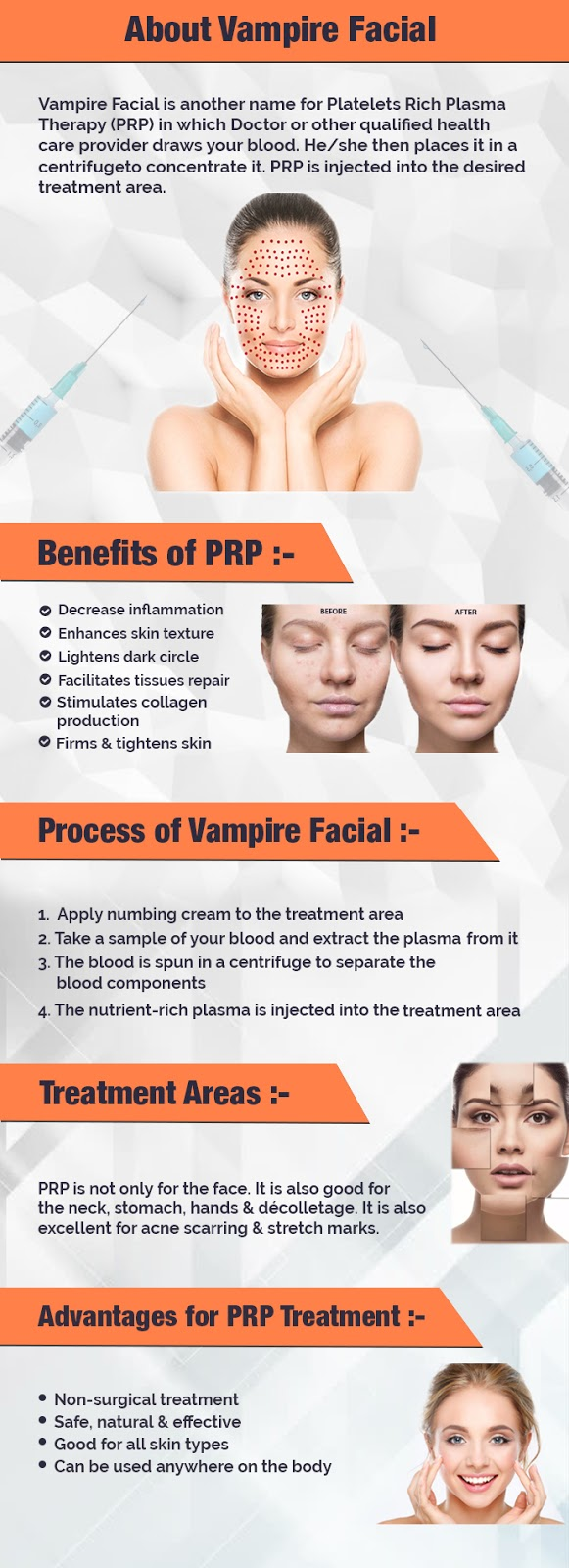 About Vampire Facial