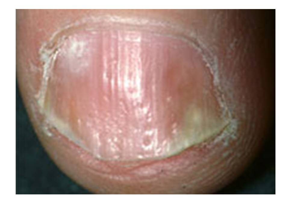 La cascada asd 2 a la psoriasis