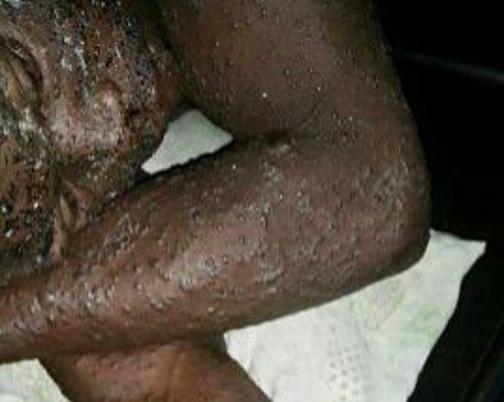 strange disease ondo state