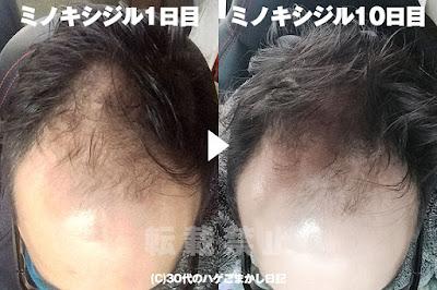10日前の頭皮と比較