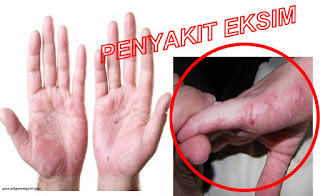 Cara Mudah Menghilangkan Gatal Eksim Pada Telapak Tangan Dan Kaki