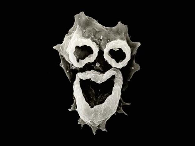 Penampakan mengerikan amoeba pemakan otak manusia