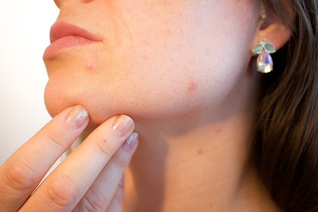 how to treat inflamed acne naturally | inflammation and redness