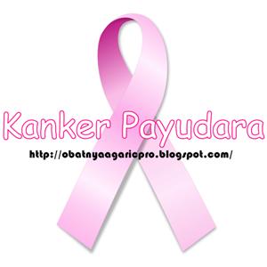Obat Kanker Payudara Ampuh Sebagai Respon Dari No Bra Day