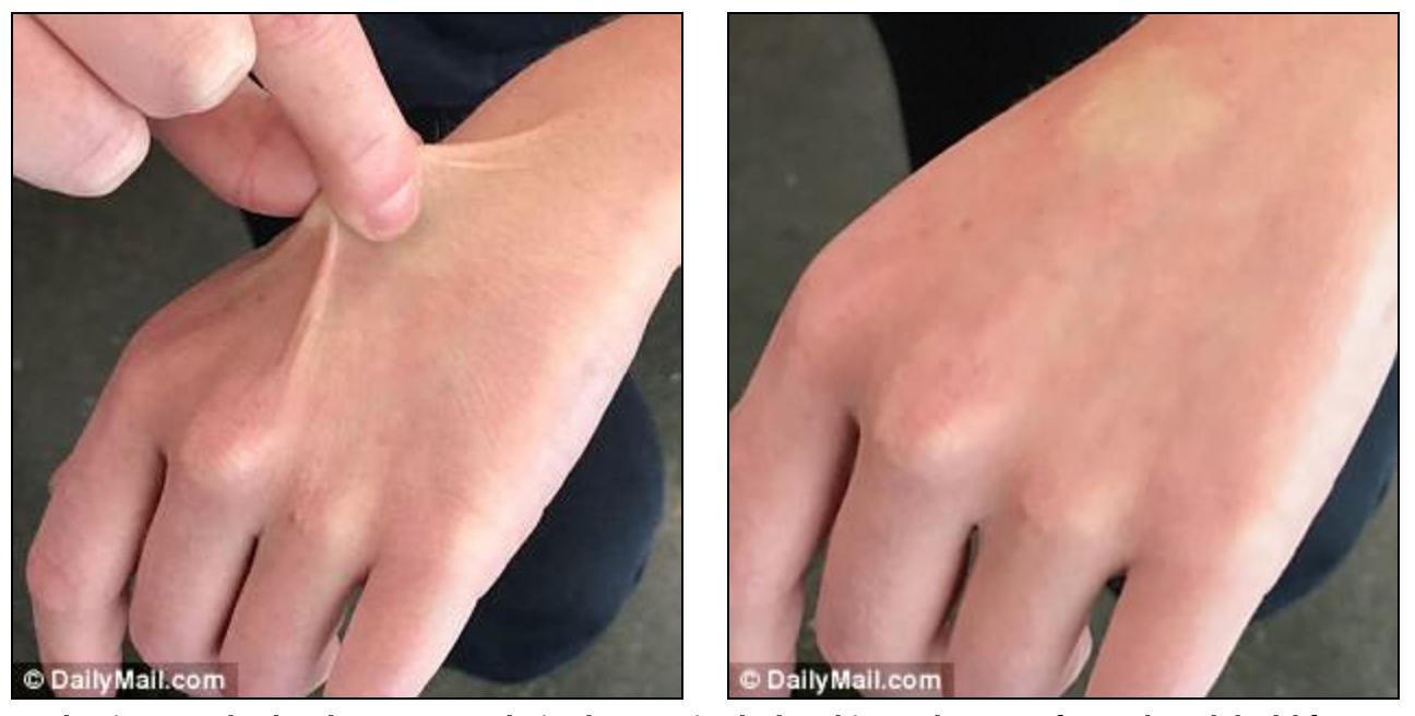 Skin Pinch Test
