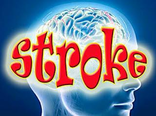 5 Cara Mudah Mengurangi Risiko Stroke