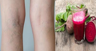 Smoothie aux betteraves et persil pour lutter contre les varices