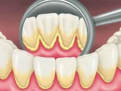 Cara Membersihkan Karang Gigi Secara Alami Cara Membersihkan Karang Gigi Secara Alami