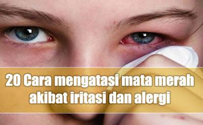 Cara mengatasi mata merah alasannya iritasi secara alami dan efektif memakai materi rumaha 20 Cara mengatasi mata merah alasannya iritasi secara alami