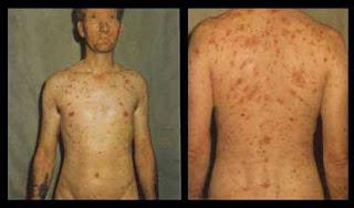 Obat Antibiotik Penyakit Sipilis Ringan
